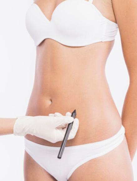 consulenza-dermocosmetica-corpo