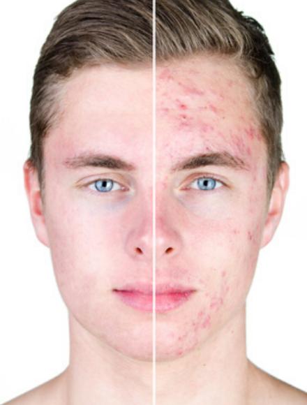 skin reset medicina etetica acne