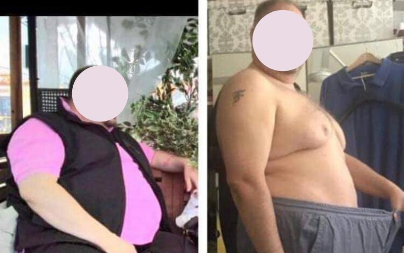 risultati pazienti kyminasi diet 3